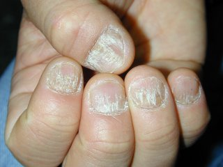 20naildystrophy0120204-1.jpg