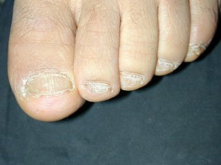 20naildystrophy0120204-3.jpg