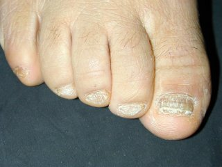 20naildystrophy0120204-4.jpg